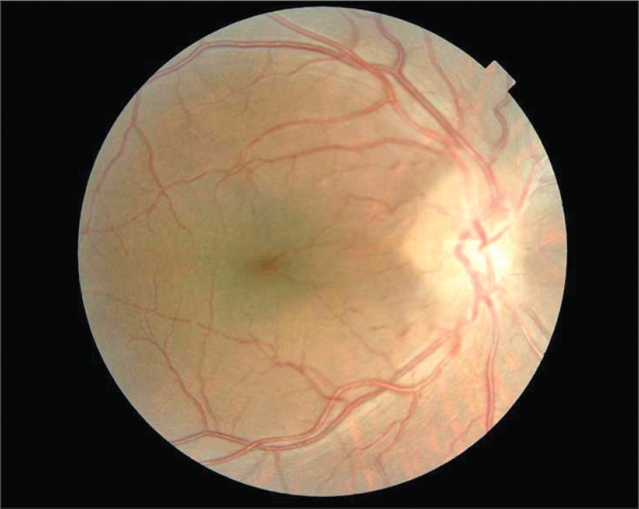 Fundus Photograph of the Right Eye Showing Pseudopapilledema with Blurred Margins.