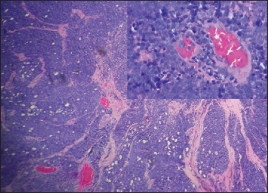 Eviscerated Tissue Revealed Viable Malignant Round Cells with Areas of Necrosis Consistent with Undifferentiated Retinoblastoma with Full-Thickness Choroidal and Ciliary Body Invasion (hematoxylin–Eosin, Original Magnification ×100). The Inset Shows Tumor Cells in Higher Magnification with Multiple Mitotic Figures (original Magnification ×1,000).