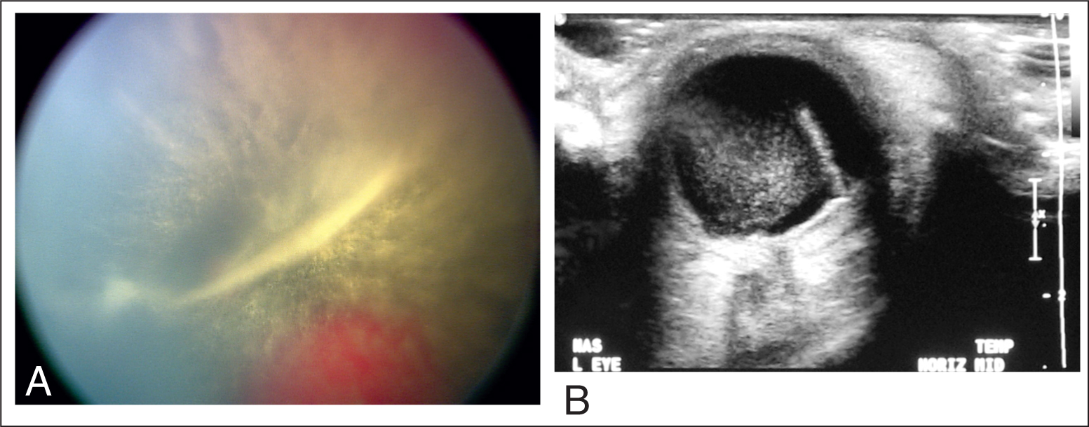 (A) Dense Vitreous Hemorrhage in the Left Eye on Wide-Field Contact Digital Fundus Camera. (B) Ultrasound of the Same Eye Showing the Vitreous Hemorrhage.