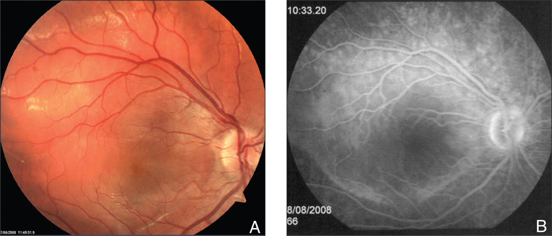(A) Funduscopy Showing Posterior Pole Edema in the Right Eye that Was Later Confirmed by (B) Fluorescein Angiography.