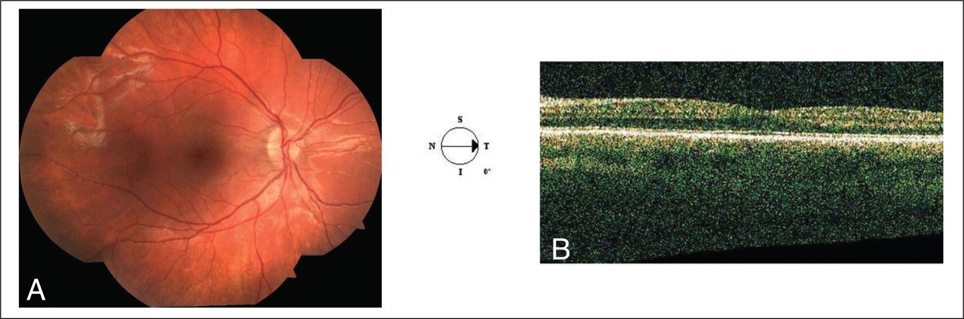 The Macular and Choroidal Edema Disappeared on (A) Funduscopy and (B) Optical Coherence Tomography.
