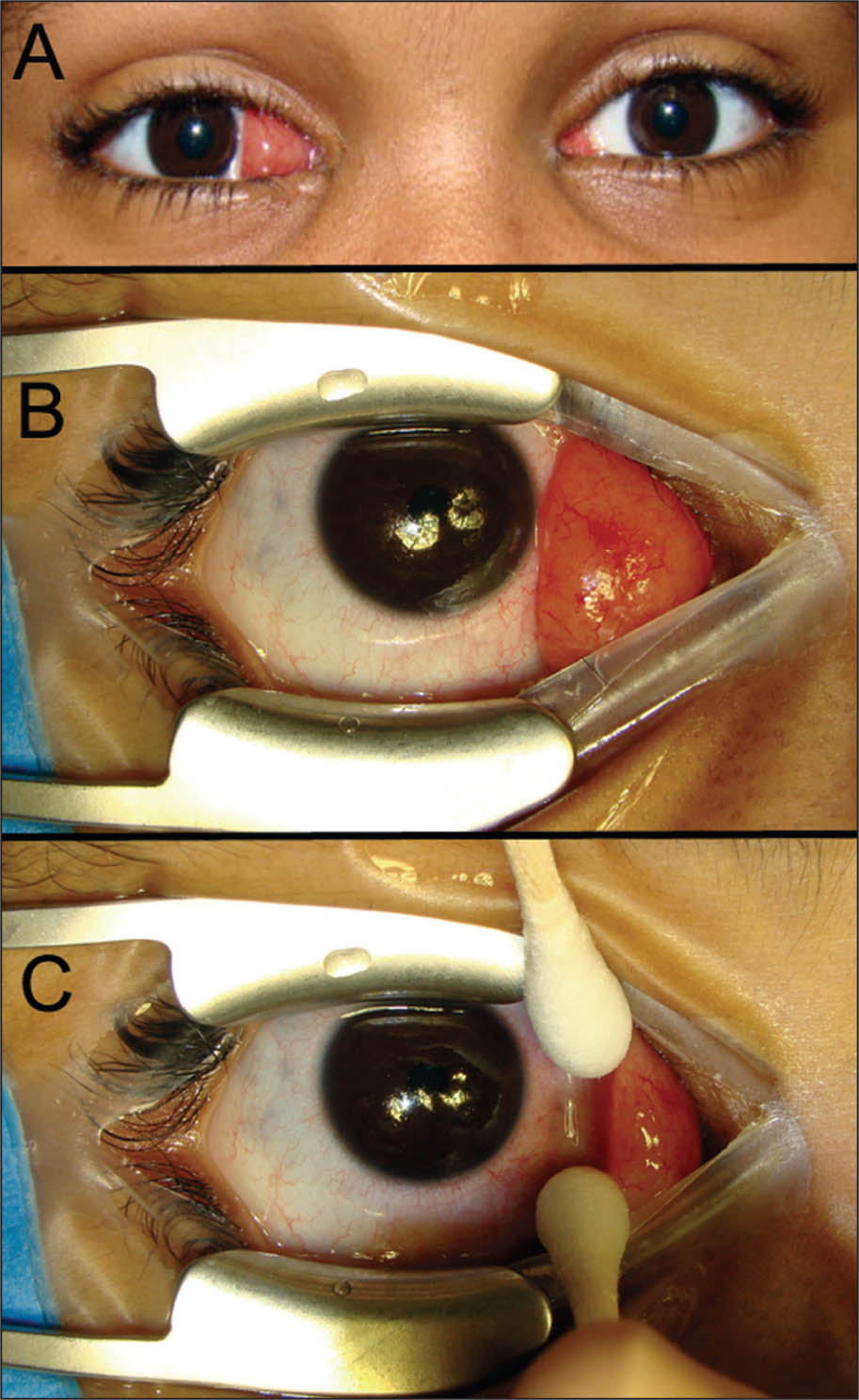 Clinical Photographs of the Conjunctival Lesions. (A) the Main Lesion on the Right Eye Nasal Conjunctiva and the Small Lesion on the Left Eye Nasal Conjunctiva. (B) Intraoperative Photograph of the Right Eye Conjunctival Lesion. (C) the Lesion Has a Narrow Base and Is not Attached to Most of the Bulbar Conjunctiva.