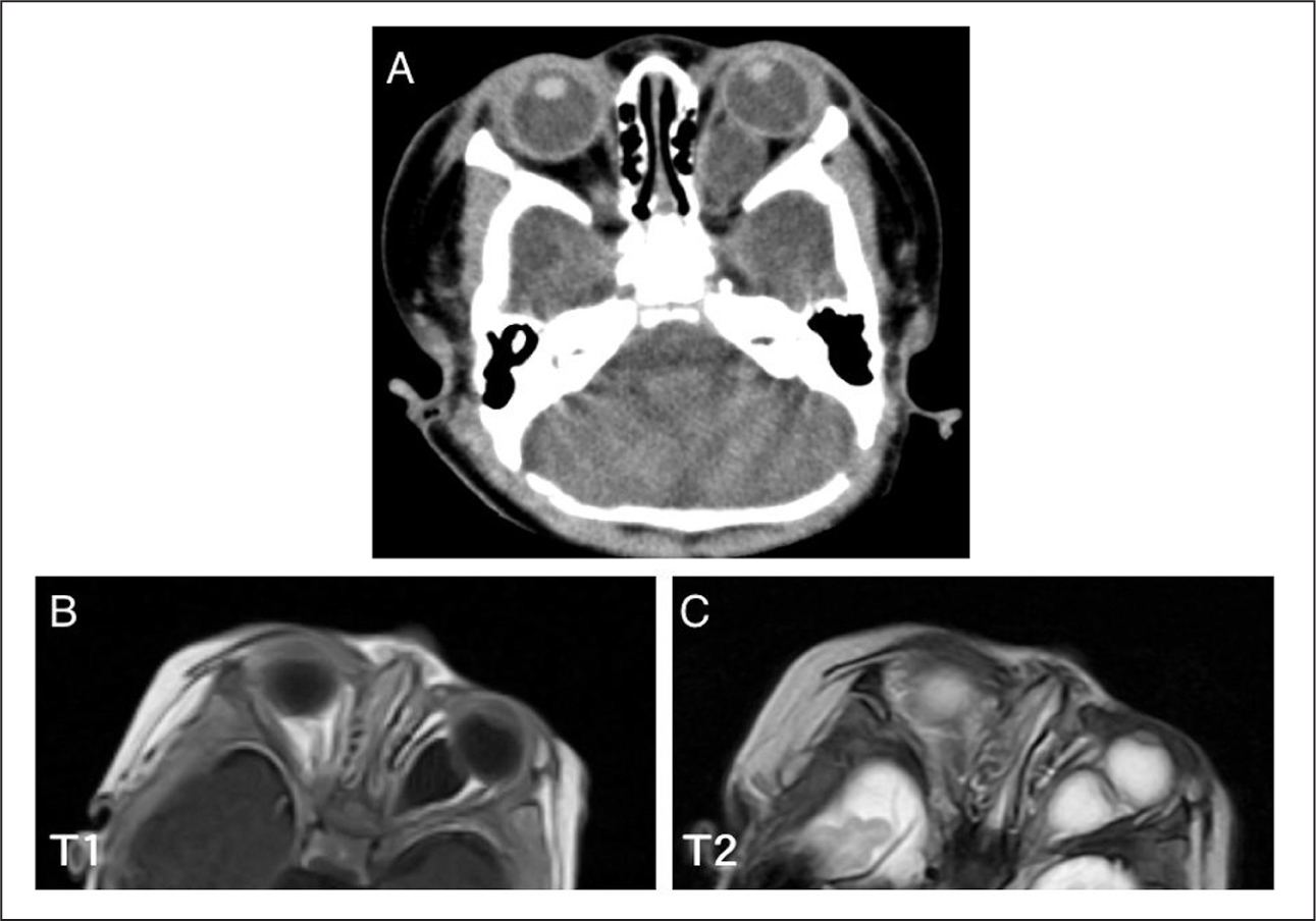(A) X-Ray Computed Tomography Shows a Cystic Lesion Occupying the Left Orbit. Density in the Cyst Seems Similar to that in the Vitreous Cavity. (B) T1- or (C) T2-Enhanced Magnetic Resonance Imaging also Revealed that Intensity in the Cyst Seems Similar to that in the Vitreous Cavity.