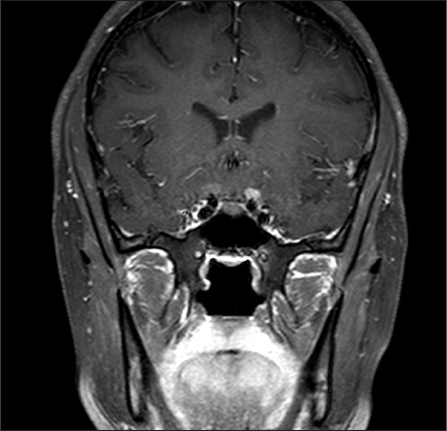 T1-Weighted Coronal Magnetic Resonance Imaging Showing Thickening and Enhancement of the Optic Nerves, Which Is Greater on the Left than on the Right.