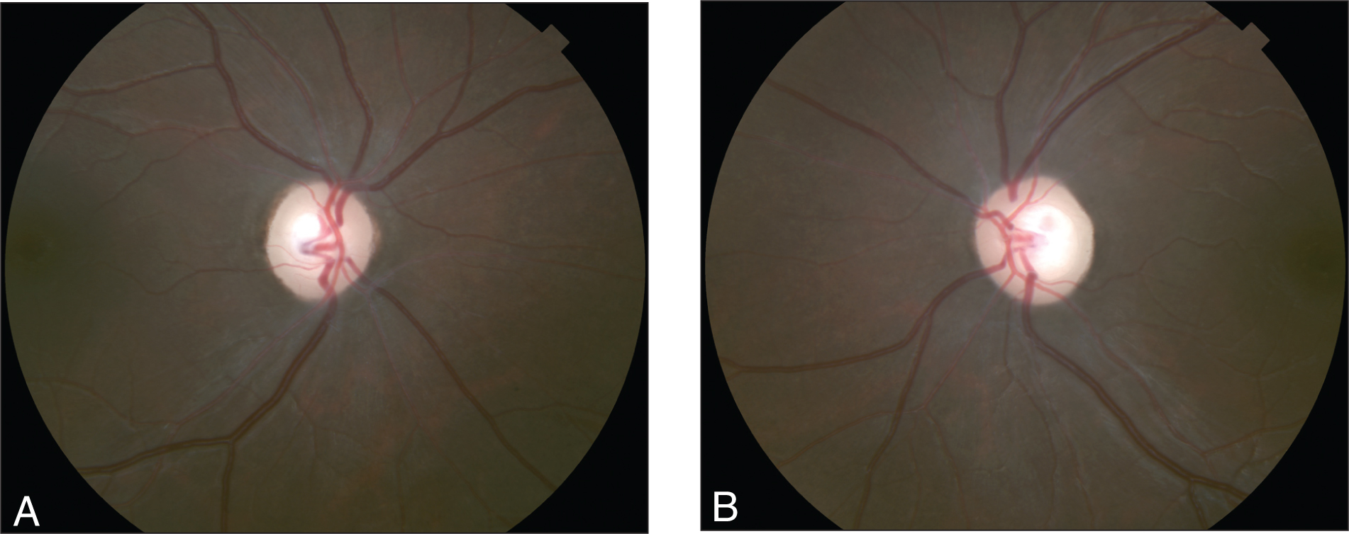 Color Optic Nerve Photographs Taken After 12 Weeks of Immunosuppressive Therapy. Visual Acuity at This Visit Was (A) No Light Perception in the Right Eye and (B) 20/400 in the Left Eye.