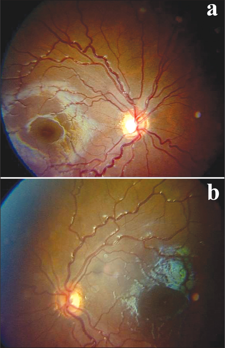 Fundus Photograph of the Right Eye (A) and the Left Eye (B) Showing Small Discs with Circumpapillary Halo (double Ring Sign). Also Note the Ratio of Disc to Macula/disc Diameter in Both Eyes Is More than 4.5.