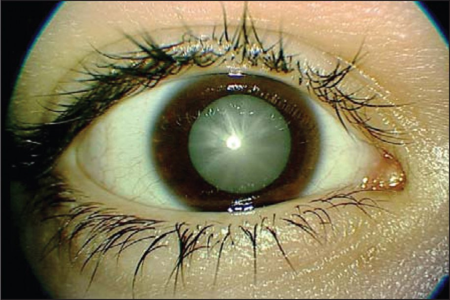 Juvenile Diabetic Cataract in the Right Eye Before Surgery.