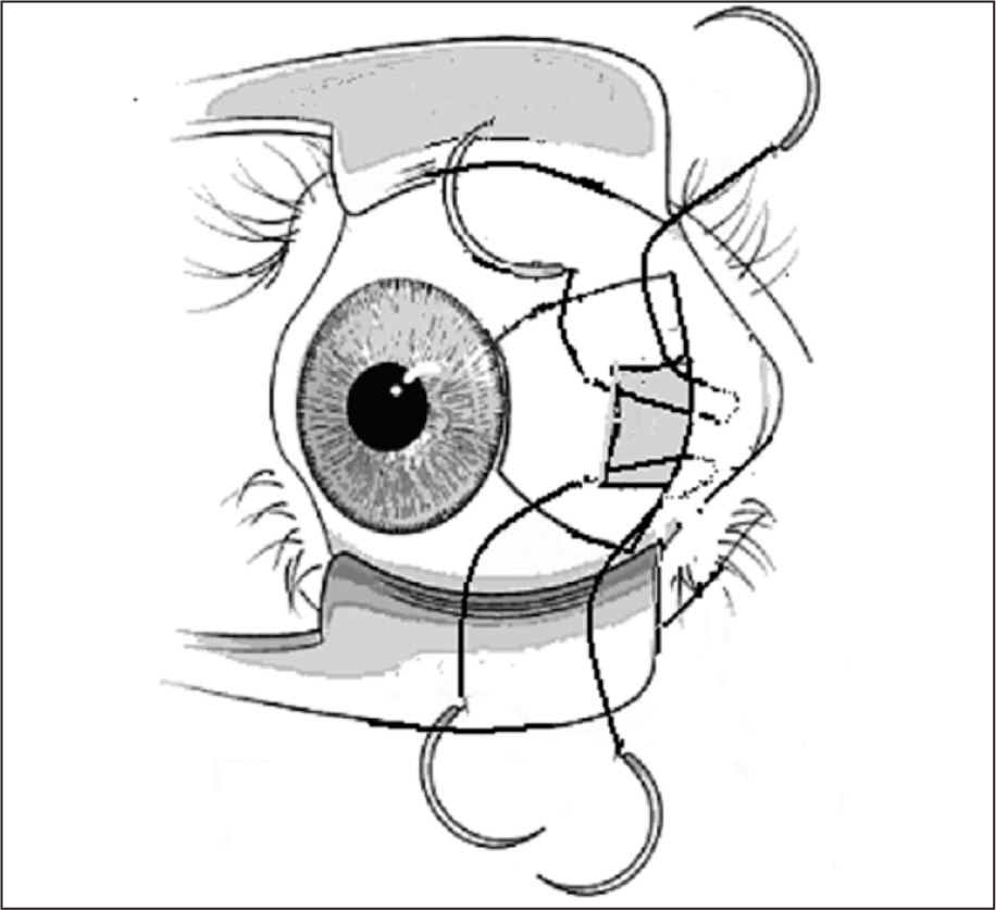 Schematic Illustration of Globe Tethering Technique to Deep Caruncular Tissue. Two Double-Armed Sutures Passed from Sclera to Caruncular Area (Medial Fornix of the Right Eye).