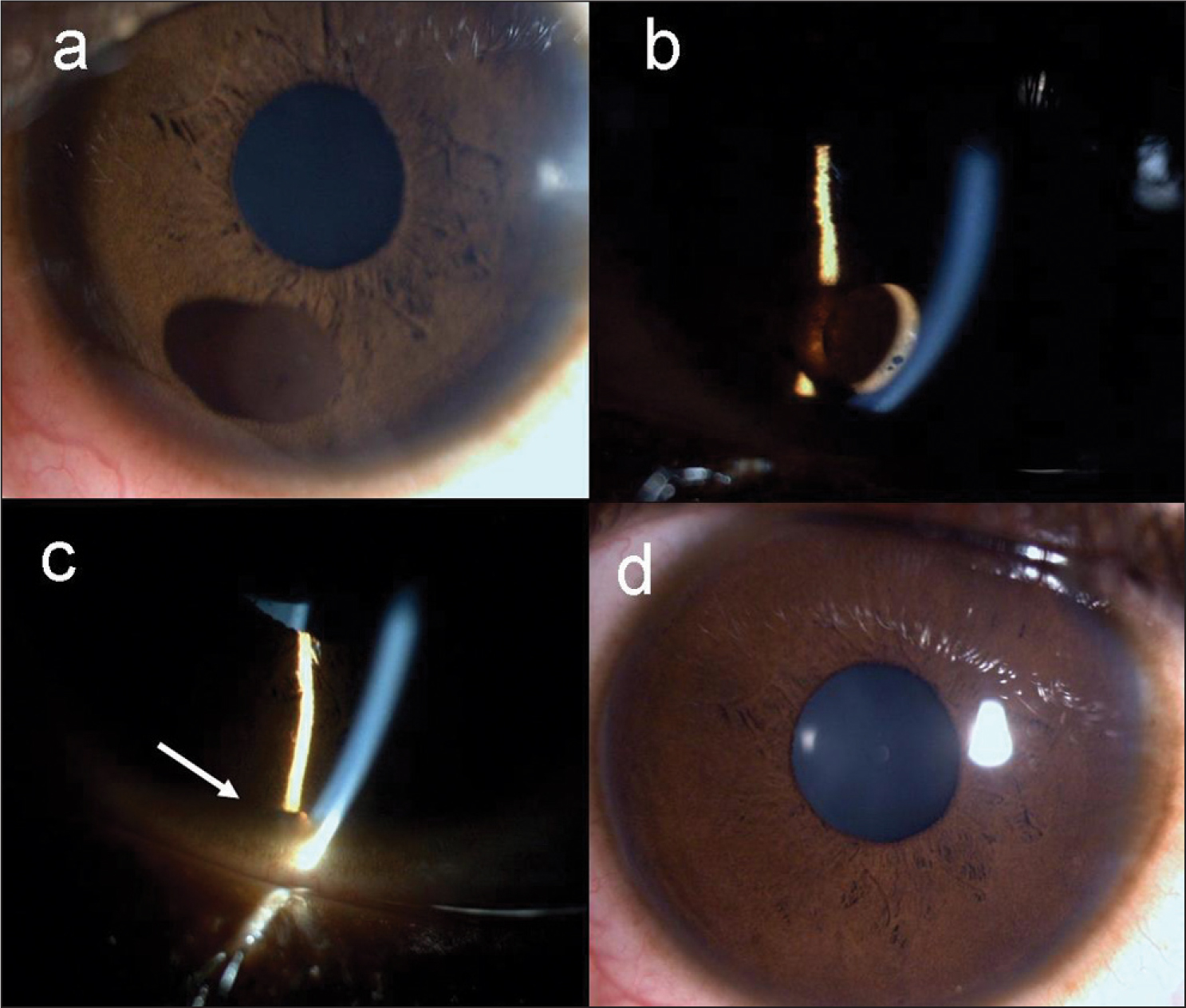 (A) Iris Stromal Cyst. (B) Slit-Lamp View Showing Iris Touching the Back of the Cornea. (C) Collapsed Cyst (arrow) After the Nd:YAG Laser Treatment. (D) At 2 Weeks of Follow-Up.