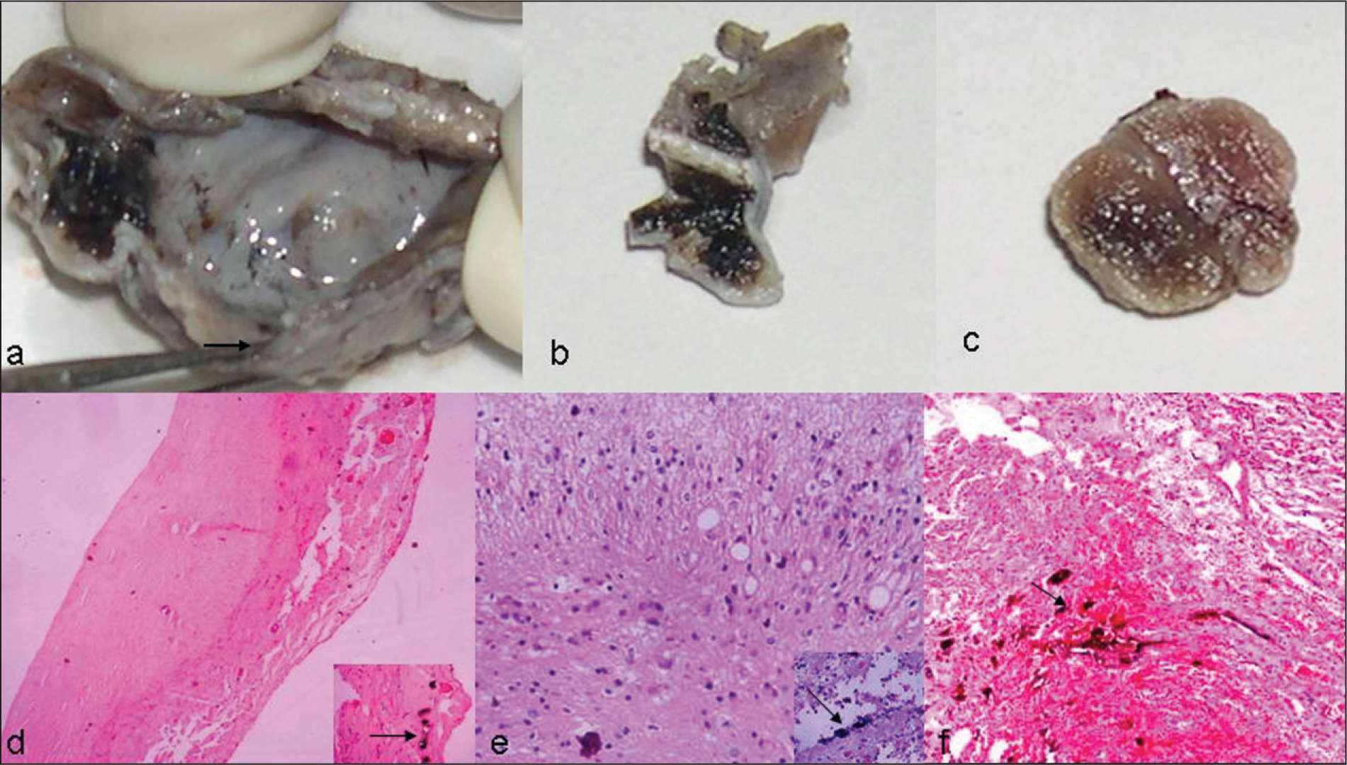 (A and B) Gross Appearance of the Cystic Masses Shows Whitish Sclera-Like Wall (arrow) in Association with Black Areas (uveal Pigment) and (C) the Solid Component Had a Variegated Appearance. (D) Low-Power View Shows Fibrous Cyst Wall Along with Blood Vessels. Inset Shows Uveal Pigment (arrow) Present Focally (hematoxylin–Eosin, Original Magnification ×100). (E) Higher Magnification Shows Neuroglial Tissue Filling the Cystic Cavity. Inset Shows Calcification (arrow) (hematoxylin–Eosin, Original Magnification ×400). (F) Rudimentary Choroid Represented by Vascularized Tissue in Association with Uveal Pigment (arrow) (hematoxylin–Eosin, Original Magnification ×200).
