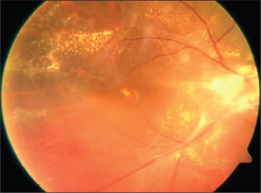 An Epiretinal Membrane Formation Extending from the Optic Disc and Macular Area to the Temporal Retinal Region in the Right Eye.