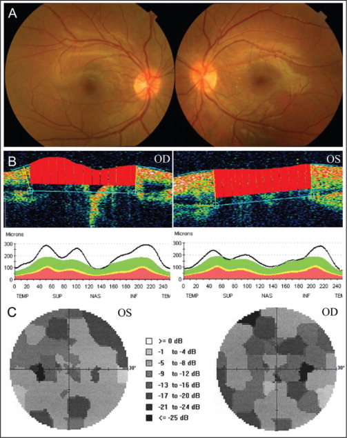 (A) Fundus photographs 1 month after steroid pulse therapy showing resolution of optic disc edema and macular exudation. (B) Optical coherence tomography showing gradual improvement of optic disc edema. (C) Visual field testing 3 months later showing residual visual field defects. OD = right eye; OS = left eye.