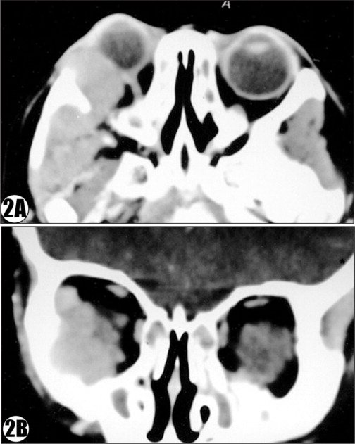 Computed tomography scan showing a mass in the region of the right inferotemporal orbit with extension into the infra-temporal fossa and masseteric space and there was erosion of the lateral orbital wall: (A) horizontal view and (B) coronal view.