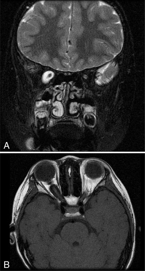 T2-weighted magnetic resonance imaging demonstrated a hyperintense fluid-filled dilated optic nerve sheath on the right eye: (A) coronal view and (B) axial view.
