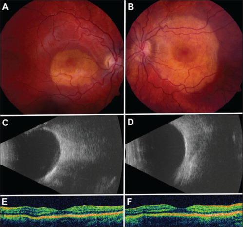 A 7-year-old girl presented with bilateral subfoveolar choroidal osteomas. Fundus photographs of the right (A) and left (B) eyes on initial presentation showed an orange-colored choroidal tumor involving the fovea measuring 4 × 3 and 7 × 7 mm, respectively. Visual acuity was 20/20 in the right eye and 20/30 in the left eye. Ultrasonography confirmed flat calcified choroidal tumors of 1-mm thickness in the right (C) and left (D) eyes. Optical coherence tomography of the right (E) and left (F) eyes showed intact inner and outer retina with normal foveal contour.