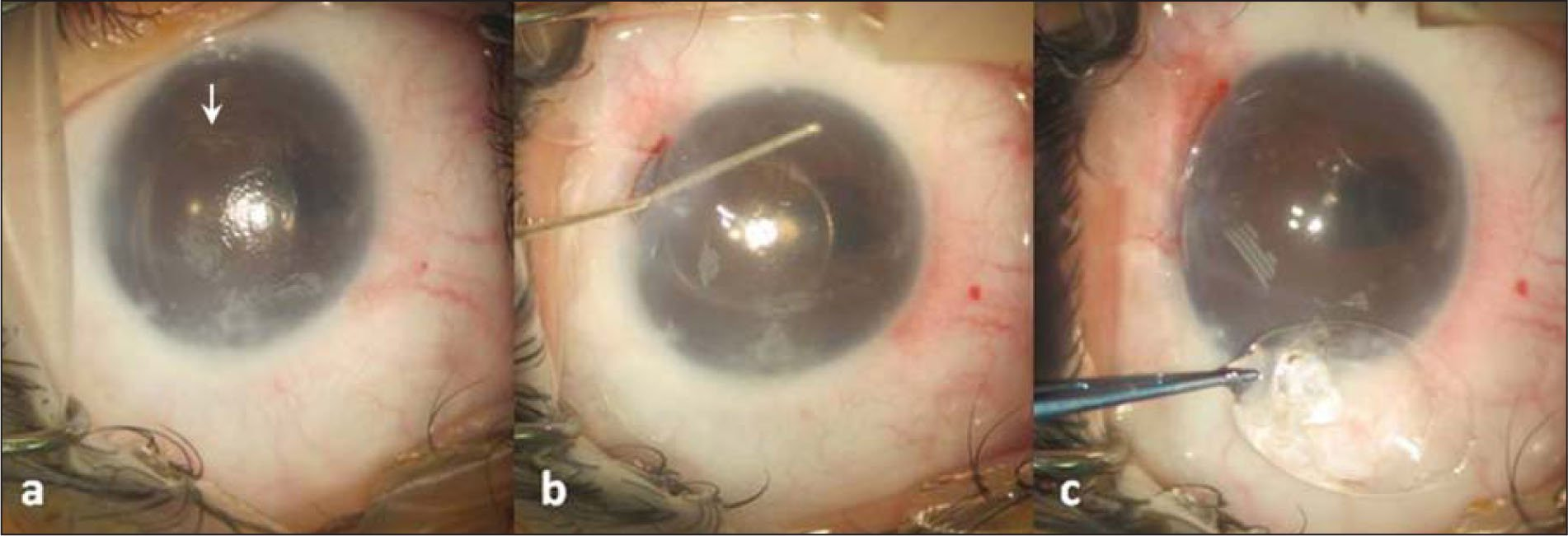 The right eye of case 1. (A) Pseudophakic corneal decompensation resulting from the dislocated Artisan Iris-Claw anterior chamber intraocular lens implant (AC-IOL) (Ophtec BV, Groningen, The Netherlands). The nasal iris claw of the lens was not clipped (arrow), resulting in the temporal displacement of the AC-IOL. The eccentric pupil is likely to be caused by previous surgical trauma and chronic in3 ammation. (B and C) Surgical explantation of the intraocular lens. Under viscoelastic, the temporal iris claw of the AC-IOL was dislodged; the AC-IOL was rotated and explanted through a superior corneal incision.