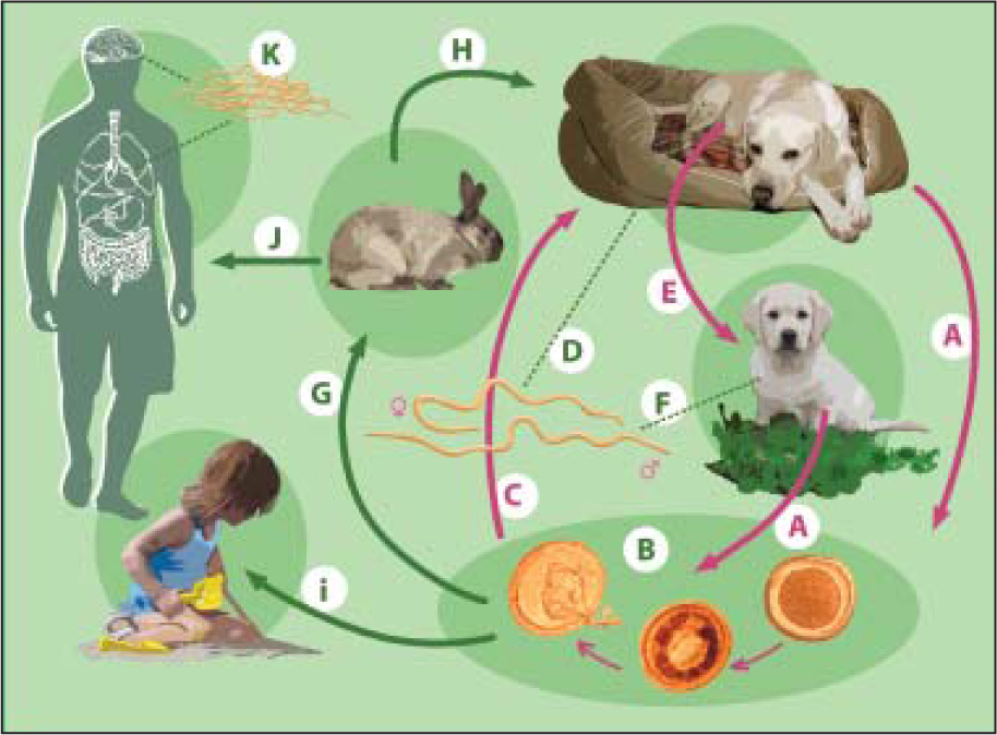 Toxocara life cycle. (A) Toxocara canis accomplishes its life cycle in dogs, with humans acquiring the infection as accidental hosts. (B) Unembryonated eggs are shed in the feces of the definitive host. Eggs embryonate and become infective in the environment. (C and D) Following ingestion by dogs, the infective eggs hatch and larvae penetrate the gut wall. In younger dogs, the larvae migrate through the lungs, bronchial tree, and esophagus; adult worms develop and oviposit in the small intestine. (E and F) In older dogs, patent infections can also occur, but larval encystment in tissues is more common. Encysted stages are reactivated in female dogs during late pregnancy and infect by the transplacental and transmammary routes the puppies, in whose small intestine adult worms become established. Puppies are a major source of environmental egg contamination. (G) T. canis can also be transmitted through ingestion of paratenic hosts: eggs ingested by small mammals (eg, rabbits) hatch and larvae penetrate the gut wall and migrate into various tissues where they encyst. (H) The life cycle is completed when dogs eat these hosts and the larvae develop into egg-laying adult worms in the small intestine. (I and J) Humans are accidental hosts who become infected by ingesting infective eggs in contaminated soil or infected paratenic hosts. (K) After ingestion, the eggs hatch and larvae penetrate the intestinal wall and are carried by the circulation to a wide variety of tissues (liver, heart, lungs, brain, muscle, and eyes). Although the larvae do not undergo any further development in these sites, they can cause severe local reactions that are the basis of toxocariasis. The two main clinical presentations of toxocariasis are visceral larva migrans and ocular larva migrans. Diagnosis is usually made by serology or the finding of larvae in biopsy or autopsy specimens.