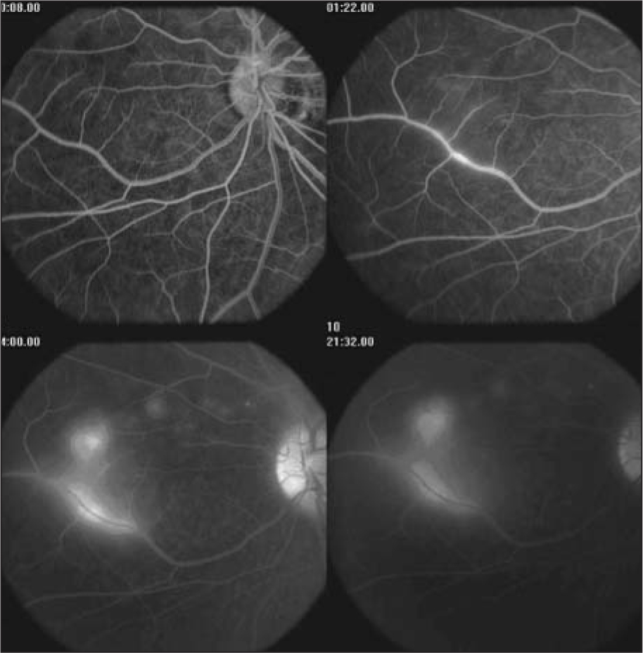 Serial fluorescein angiogram of a patient with early stage diffuse unilateral subacute neuroretinitis showing areas of both vascular and retinochoroidal leakage and staining.