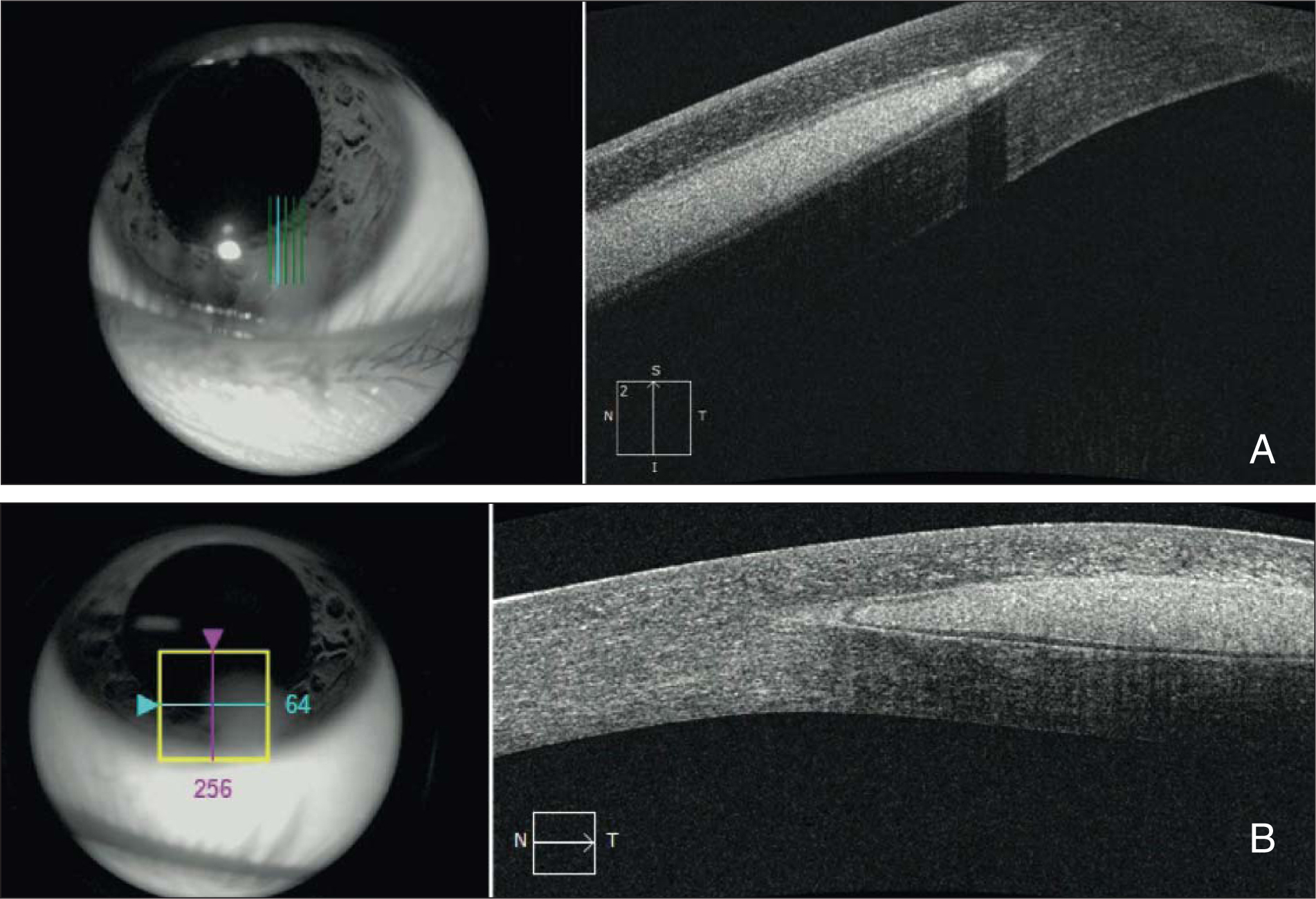 Anterior segment optical coherence tomography (OCT) demonstrating an intrastromal lesion. (A) Cross-sectional vertical anterior segment OCT of scalloped edge, and (B) cross-sectional horizontal anterior segment OCT of peripheral edge.