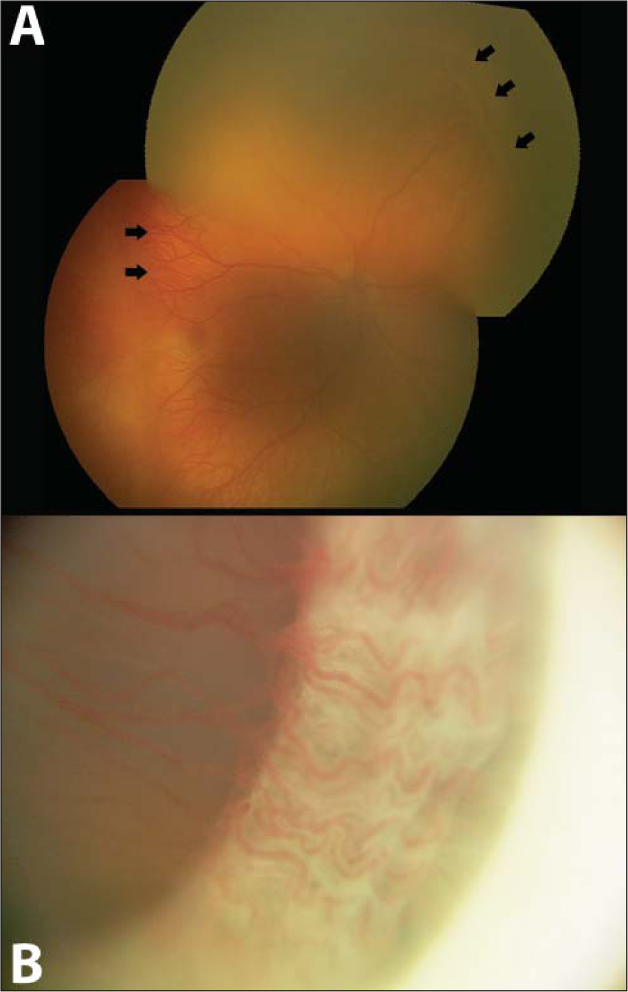 (A) RetCam fundus photograph (Clarity Medical Systems, Pleasanton, CA) of the right eye, which was limited by significant media opacity from a persistent tunica vasculosa lentis, showing zone 1, stage 3 (arrows) retinopathy of prematurity with plus disease. (B) RetCam anterior segment photograph of the right eye showing a prominent persistent tunica vasculosa lentis, with vessels extending from the peripheral iris all the way across the pupillary axis in a 360 degree fashion. Images were acquired using the RetCam D1300 lens, which can be used to image the fundus and anterior chamber of pediatric patients.