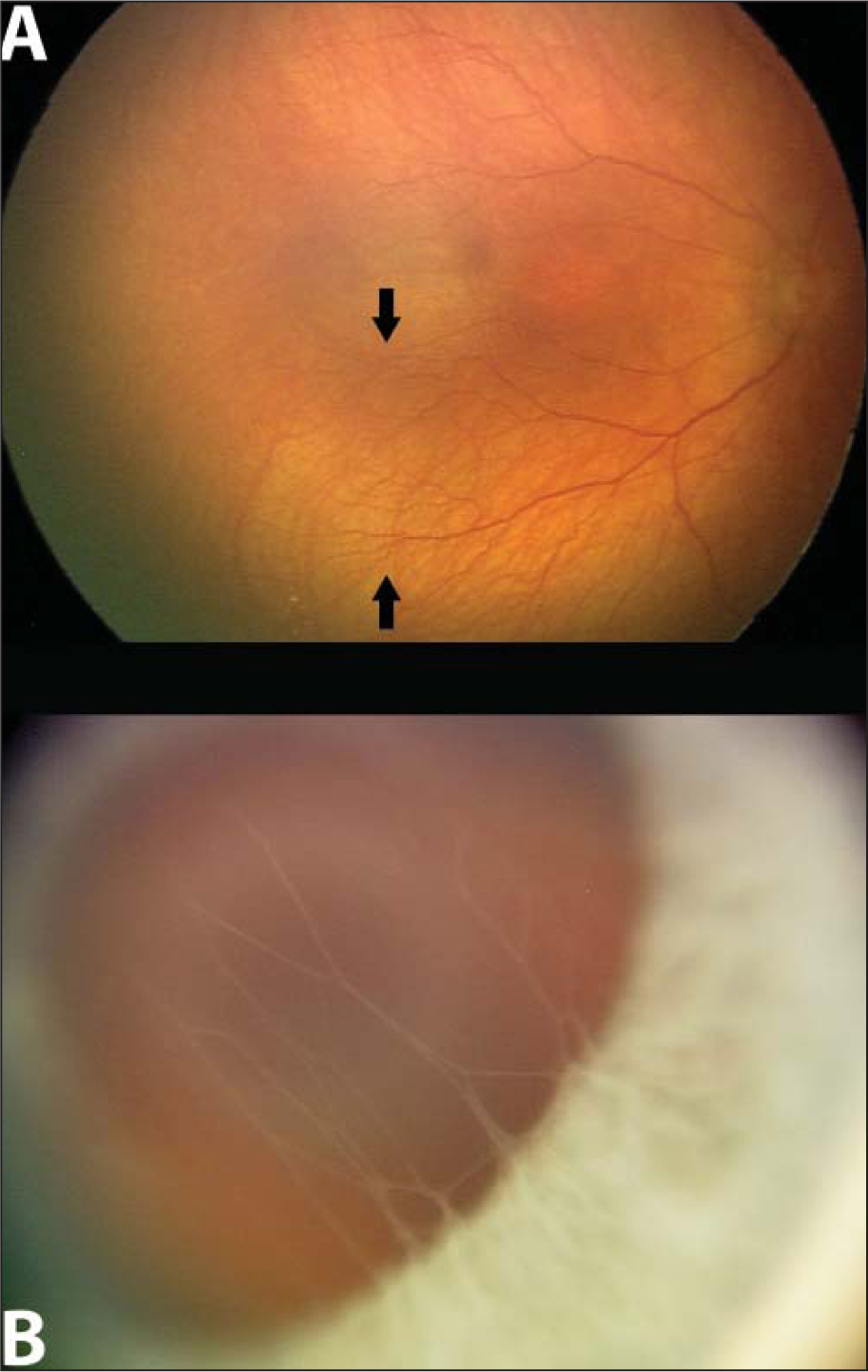 (A) RetCam fundus photograph (Clarity Medical Systems, Pleasanton, CA) of the right eye 1 month following treatment with intravitreal bevacizumab showing regression of retinopathy of prematurity and continued vascularization of the retina beyond the point where prior vascularization halted (arrows). (B) RetCam anterior segment photograph of the right eye 2 days following treatment with intravitreal bevacizumab (0.625 mg/0.025 mL) showing dramatic resolution of the tunica vasculosa lentis vessels, leaving behind ghost vessels.