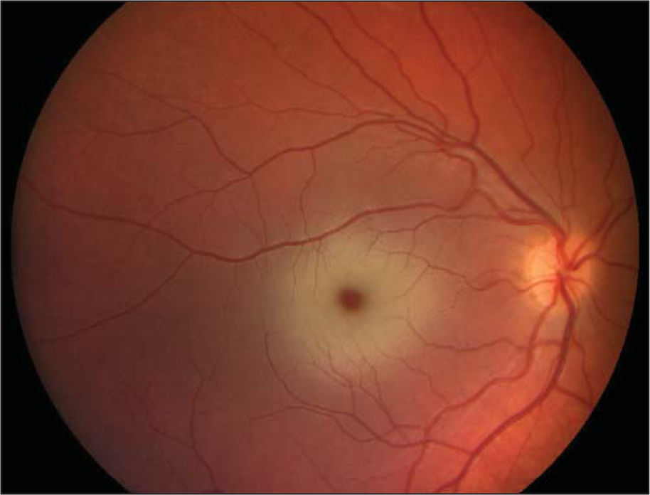 Right eye fundus examination of case 1 showing a cherry-red spot.