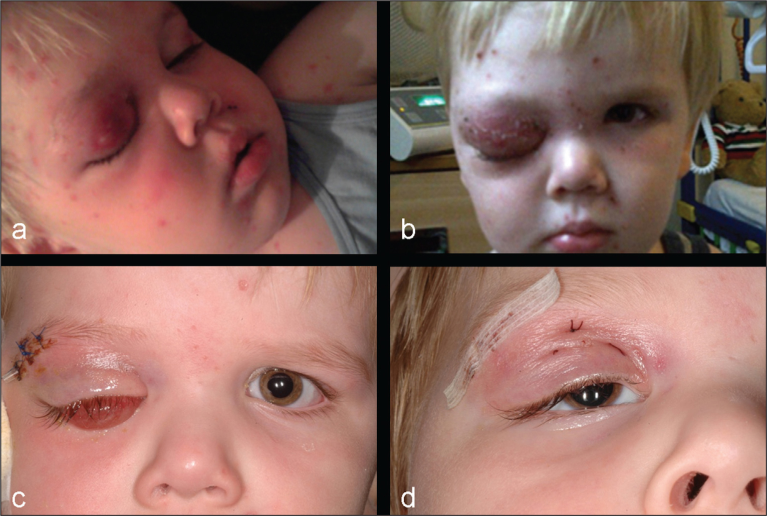 Color photographs of the patient (A) 2 hours after onset of onset of cellulitis, (B) 7 days after commencing intravenous antibiotic treatment, and (C) 2 and (D) 10 days following treatment with systemic intravenous steroids. (D) The 'chin up position' is shown due to the degree of postoperative ptosis.