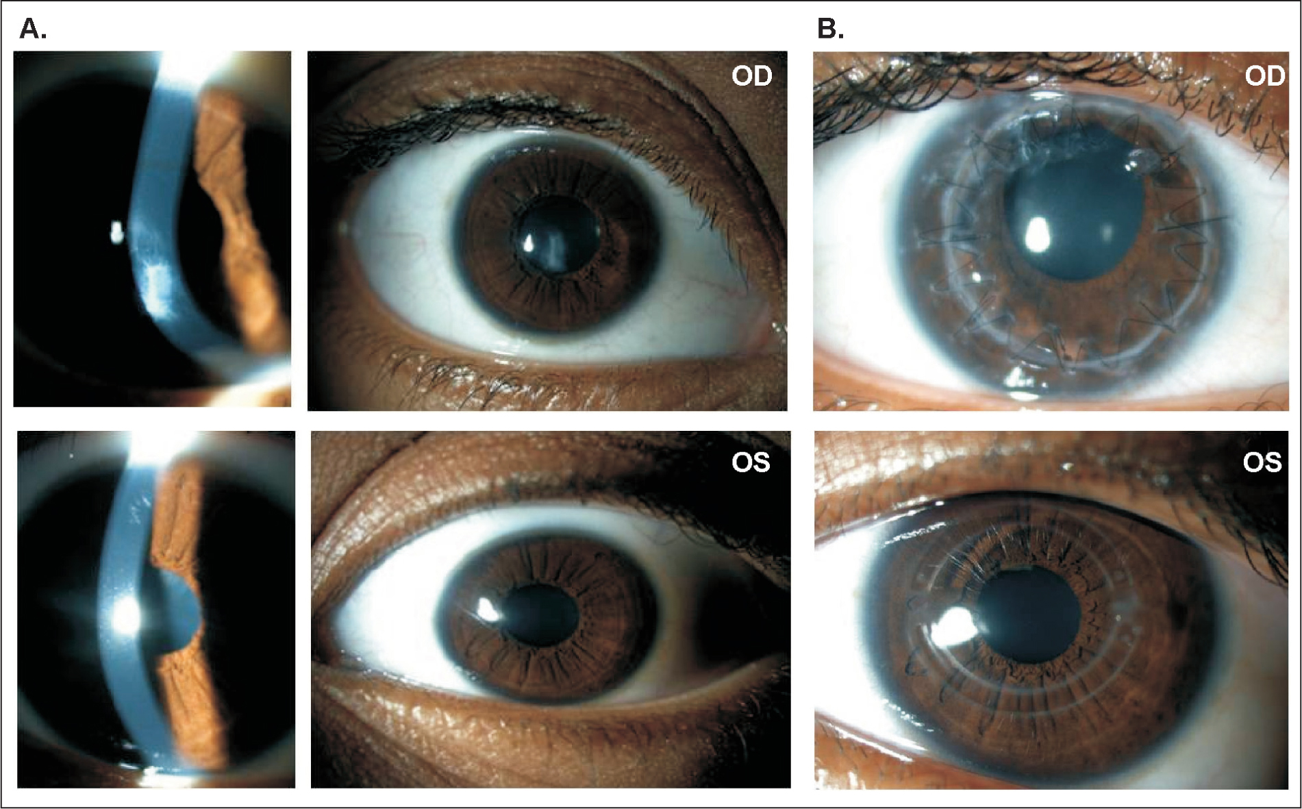 Biomicroscopy of the (A) right eye (OD) and left eye (OS) before surgery and (B) after penetranting keratoplasty in the right eye and after surgical implantation of intracorneal ring segments followed by corneal collagen cross-linking in the left eye.