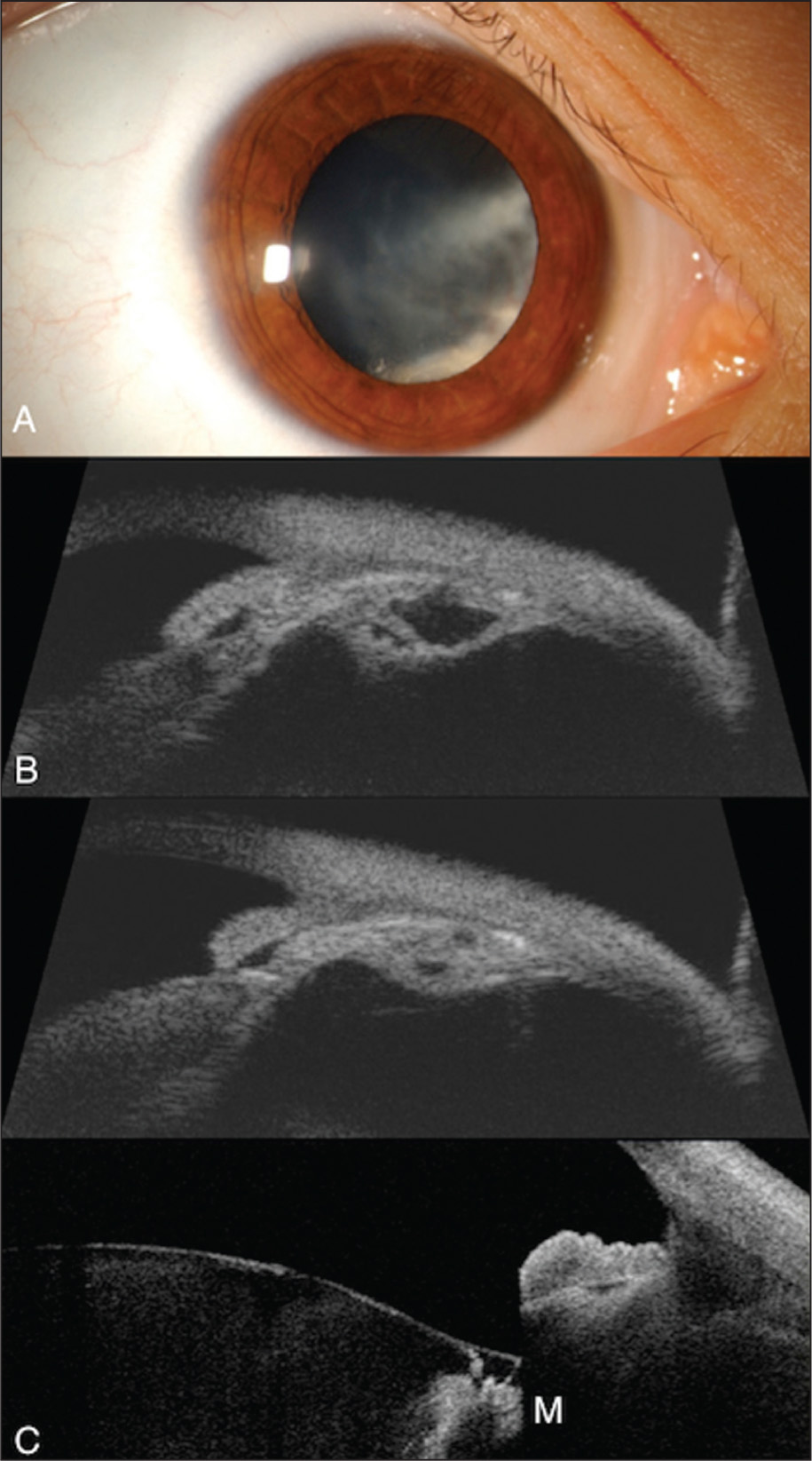 Ciliary body medulloepithelioma in a 9-year-old girl with previously treated pleuropulmonary blastoma. (A) A white mass arising in the ciliary body region inferonasally is noted. The mass extends along the posterior surface of the lens as a cyclitic membrane with ill-defined margins. (B) By ultrasound biomicroscopy (two views), the mass appears relatively thin but extensive, involving 6 clock hours, growing onto the lens capsule, and demonstrating intralesional cysts/cavities consistent with medulloepithelioma. (C) Anterior segment optical coherence tomography shows the dilated iris with mass (M) immediately posterior and extending along the zonule to the back and front surface of the lens.