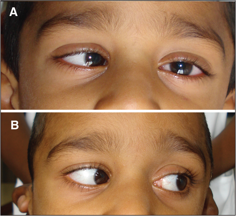 Clinical photograph showing left lateral gaze of the patient (A) before and (B) after surgical decompression of the arachnoid cyst.