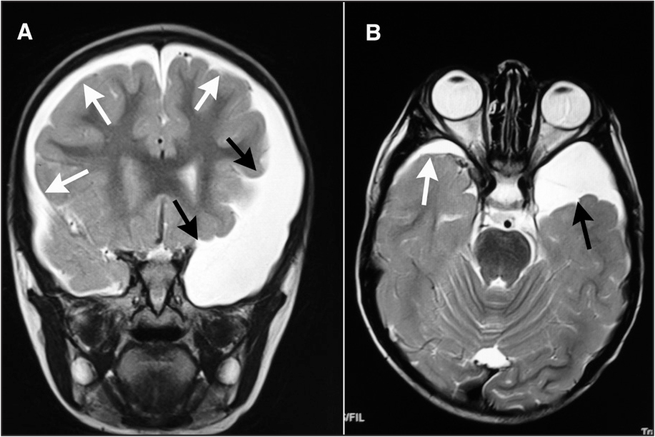 (A) Coronal and (B) axial sections of T2-weighted magnetic resonance imaging showing the extent of the arachnoid cyst (black arrows) and subdural hygroma (white arrows).