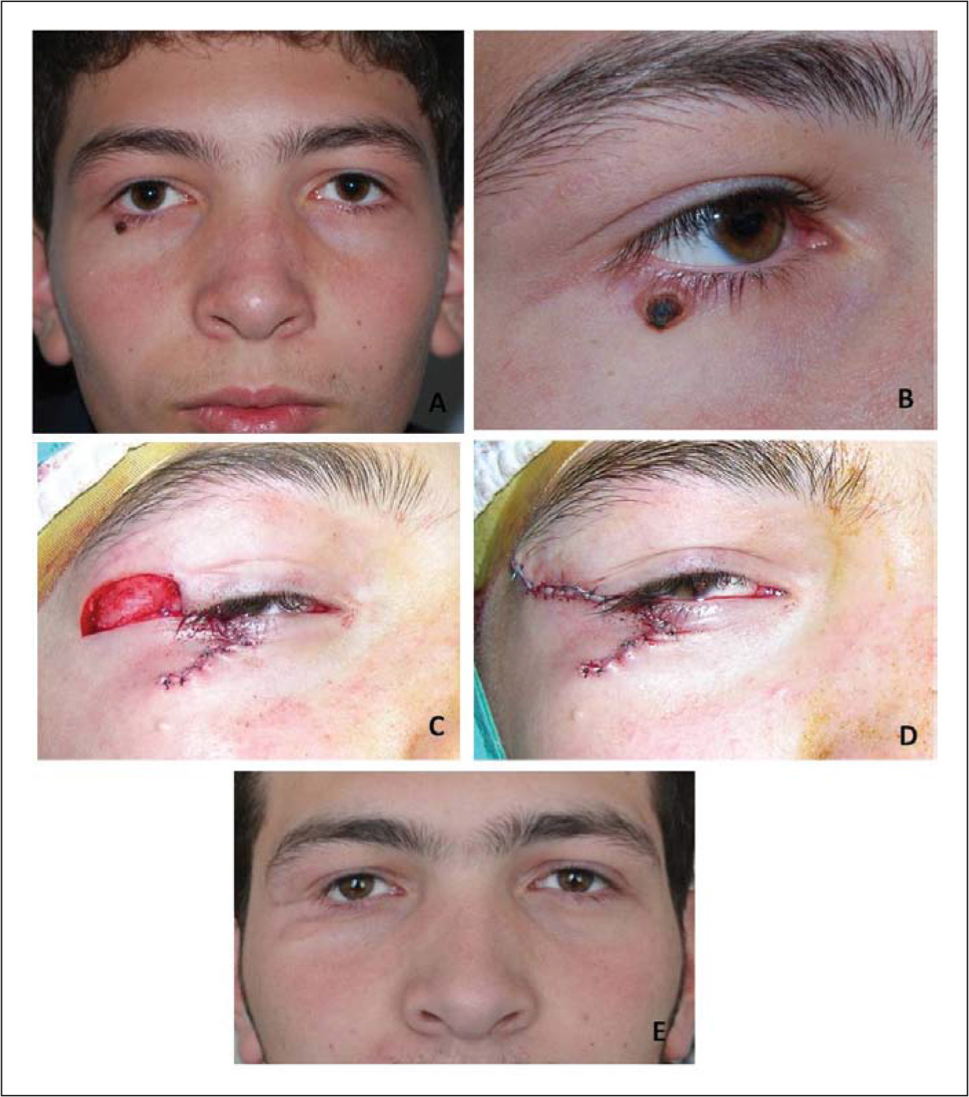 (A and B) Ulceronodular basal cell carcinoma in the right lower eyelid of a 14-year-old healthy boy. (C and D) The excisional eyelid defect was reconstructed with a semicircular flap. (E) There was no tumor recurrence or any other disease at 44 months after surgery, but the periocular scar was still visible.