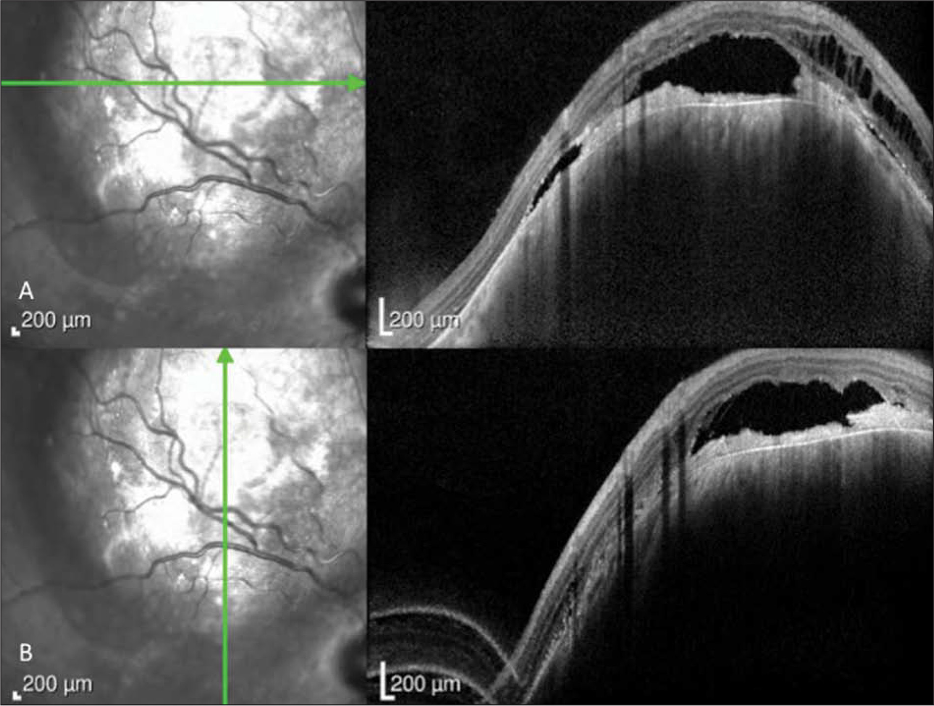 Optical coherence tomography images of choroidal melanoma. (A) Horizontal and (B) vertical imaging cuts showing the abruptly elevated choroidal mass with overlying subretinal fluid and subretinal debris with intraretinal cystoid changes.