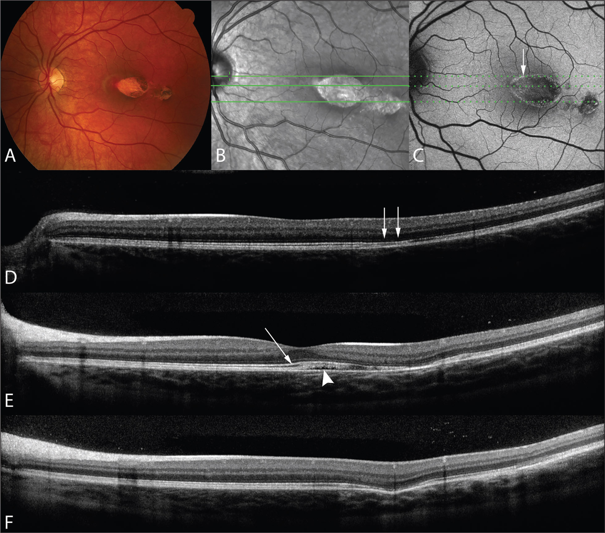 "Torpedo maculopathy. (A) Color fundus photograph showing a classic ""torpedo"" lesion with a smaller satellite lesion temporal to this. (B) Infrared image with line scans through areas of interest. (C) Fundus autofluorescence (FAF) image. The dotted lines show the corresponding location to the line scans in the infrared image. FAF reveals reduced autofluorescence of the lesion and a rim of increased autofluorescence along the margin of the lesion. The top dotted line passes through an area of increased FAF (arrow). (D–F) Horizontal spectral-domain optical coherence tomography images corresponding to the line scans in (B, C). (D) Photoreceptor loss with intact retinal pigment epithelium (RPE) (arrows) corresponding to an area of increased FAF. (E) Thickening of the interdigitation zone (arrow) and sub-RPE cleft formation (arrowhead). (F) Loss of the ellipsoid zone, interdigitation zone and RPE atrophy with increased transitivity to the choroid."