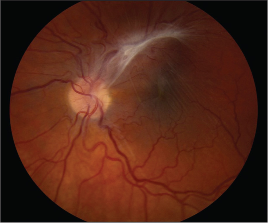 Combined hamartoma of the retina and retinal pigment epithelium in the left eye demonstrating white epiretinal fibrous tissue along the superotemporal vessels, causing retinal vascular dragging and retinal striae.