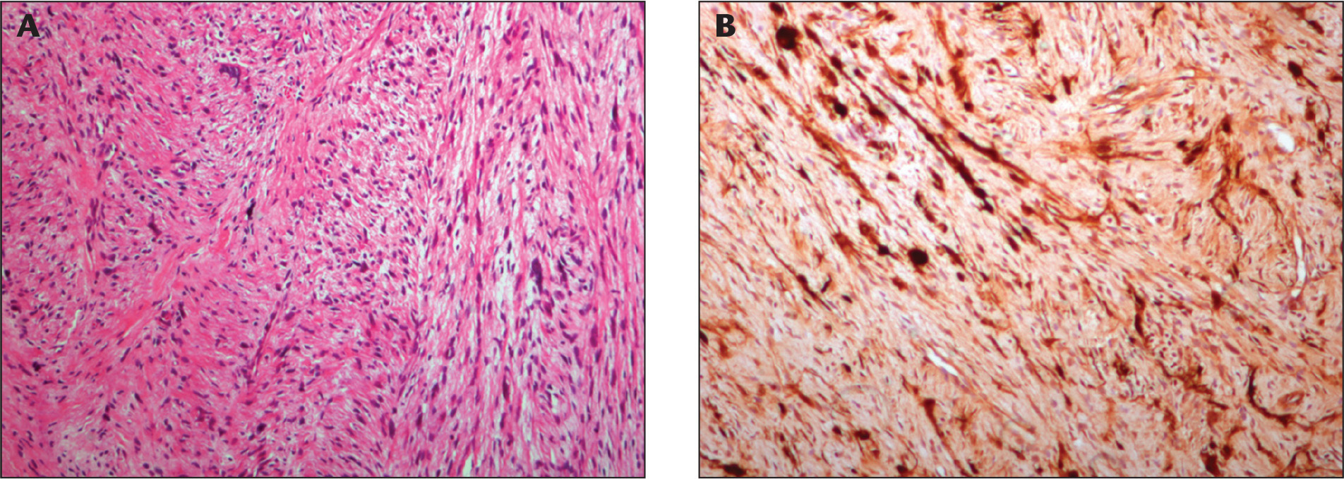 Histopathological sections show (A) fascicles of spindle cells with pleomorphic nuclei (hermatoxilyn–eosin, original magnifica-tion ×40) and (B) diffuse positive staining for S-100 (S-100, original magnification ×100).