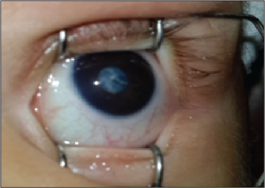Congenital cataract in the left eye.