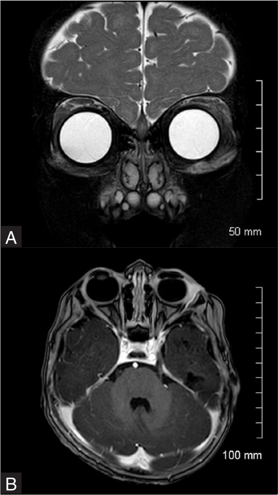 Magnetic resonance imaging. (A) Coronal view after chemotherapy induction cycle A. (B) Axial view after chemotherapy induction cycle A.