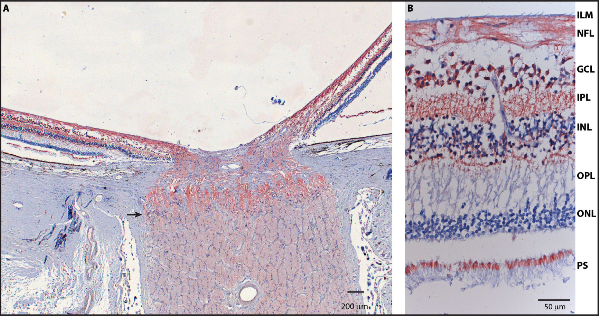 Mitochondrial distribution in the eye. A section of a human eye was stained using antibodies raised against subunit IV of cytochrome C oxidase. The brownish color indicates the presence of mitochondria. (A) Please note the abrupt change in mitochondrial content (arrow) once the optic nerve is formed by the retinal ganglion cell axons. (B) Also note the strong mitochondrial staining in the different retinal layers. ILM = inner limiting membrane; NFL = nerve fiber layer; GCL = ganglion cell layer; IPL = inner plexiform layer; INL = inner nuclear layer; OPL = outer plexiform layer; ONL = outer nuclear layer; PS = photoreceptors (Image courtesy of Prof. Peter Meyer, Basel, Switzerland.)