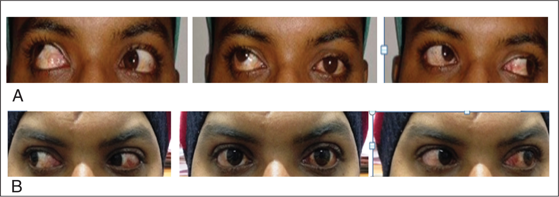 (A) Preoperative photograph of case 2 showing exotropia and hypertropia. (B) Postoperative photograph showing good alignment in primary gaze after surgery in both eyes.