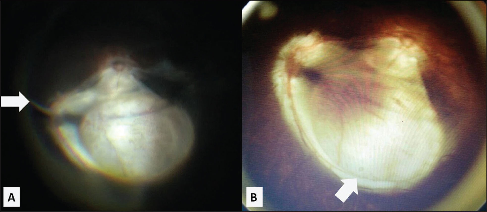 (A) Intraoperative fundus photograph of case 2 showing a stalk emanating from the optic disc in the left eye (arrow). (B) Postoperative fundus photograph showing the optic disc with the excised stalk and the choroidal coloboma (arrow).