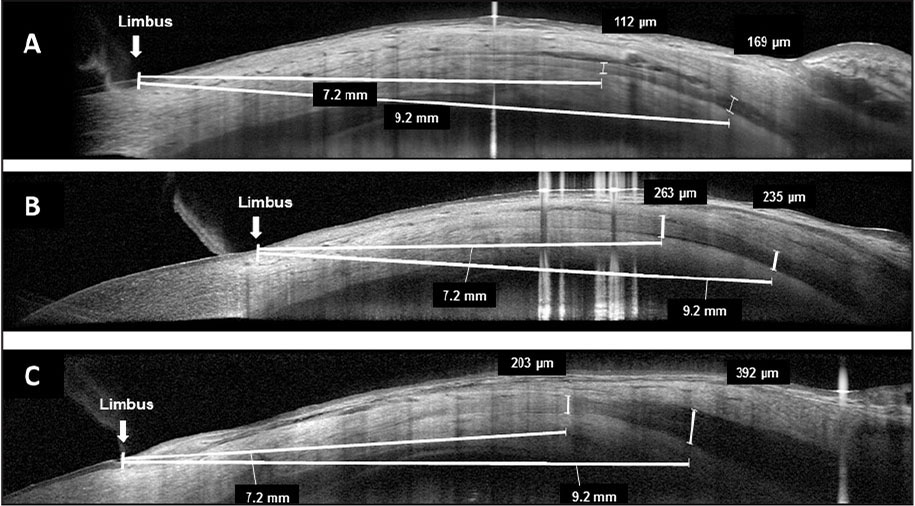 Medial rectus muscle thickness measurements. Medial rectus thickness measured 7.2 and 9.2 mm from the limbus by optical coherence tomography in a (A) healthy control, (B) patient with inactive Graves' ophthalmopathy, and (C) patient with active Graves' ophthalmopathy.