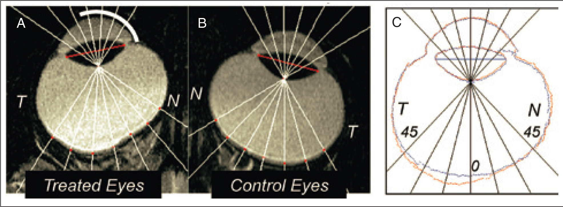 Monocular, nasal translucent lenses are placed in front of a monkey's (A) left eye (treated eye) while the (B) right eye serves as a control. The translucent lens could be replaced with a minus lens with similar results. The temporal portion of the left eye elongates as a result of the altered visual stimulation. (C) The difference between the right and left eye, showing the amount of regional elongation of the left eye. This would occur even if the optic nerve is cut, but would not occur if atropine is injected into the eye. Reprinted with permission from Smith EL 3rd. Prentice award lecture 2010: a case for peripheral optical treatment strategies for myopia. Optom Vis Sci. 2011;88:1029–1044.