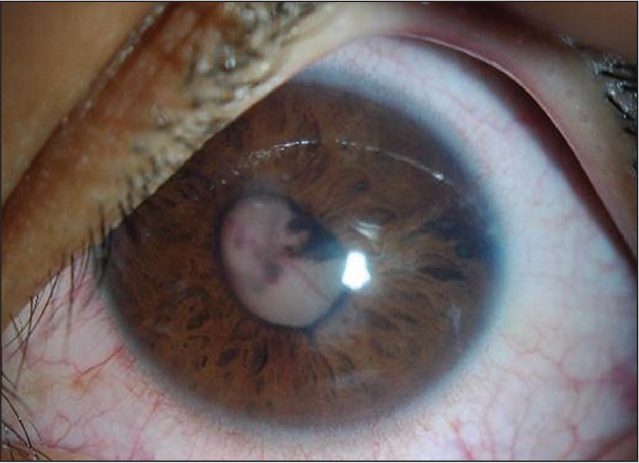 Slit-lamp photograph of the left eye showing a red eye with a shallow anterior chamber, a white-yellow mass protruding through the pupil, posterior synechia, and inferior temporal iris atrophy. Also appreciable were engorged episcleral vessels and iris neovascularization.