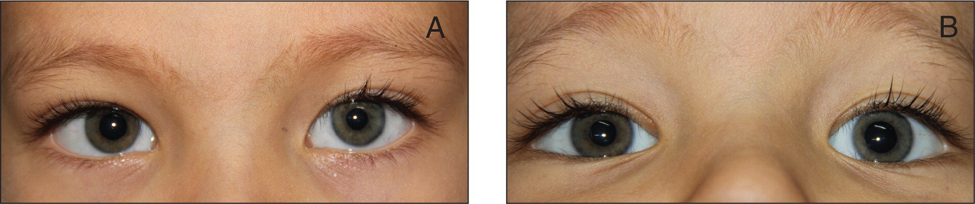 (A) Left-sided miosis. (B) Anisocoria is reversed after instillation of 0.5% apraclonidine.