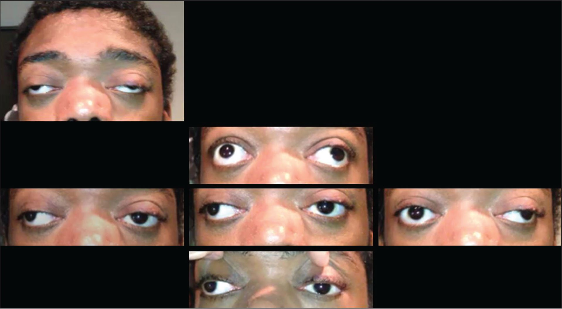 Case 1 at 21 years of age with progressive ptosis, exotropia, and ophthalmoplegia associated with epidermolysis bullosa simplex associated with muscular dystrophy and plectin deficiency.
