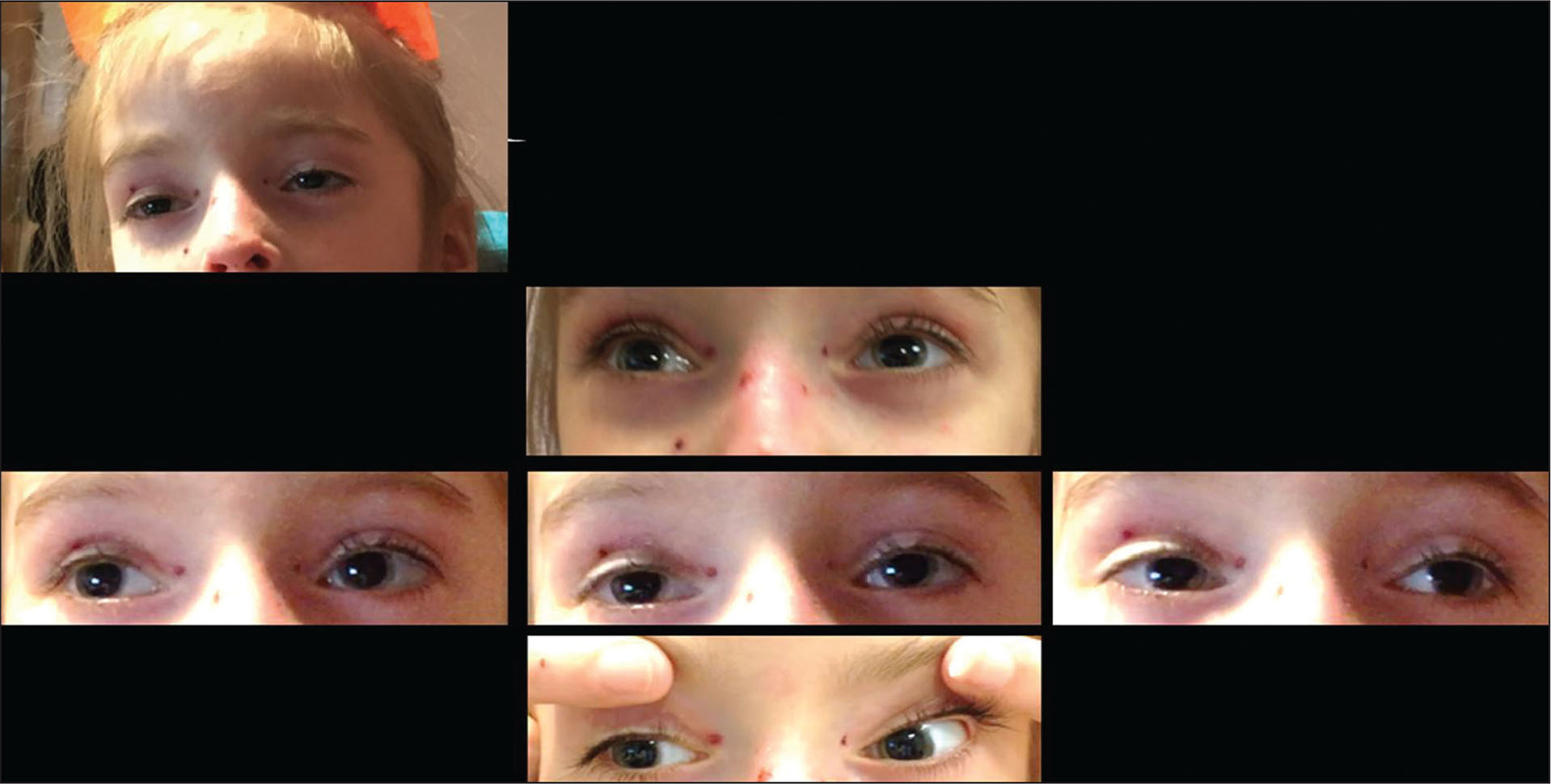 Case 2 at 6 years of age with ptosis, ophthalmoplegia, and epidermolysis bullosa simplex associated with muscular dystrophy and plectin deficiency.