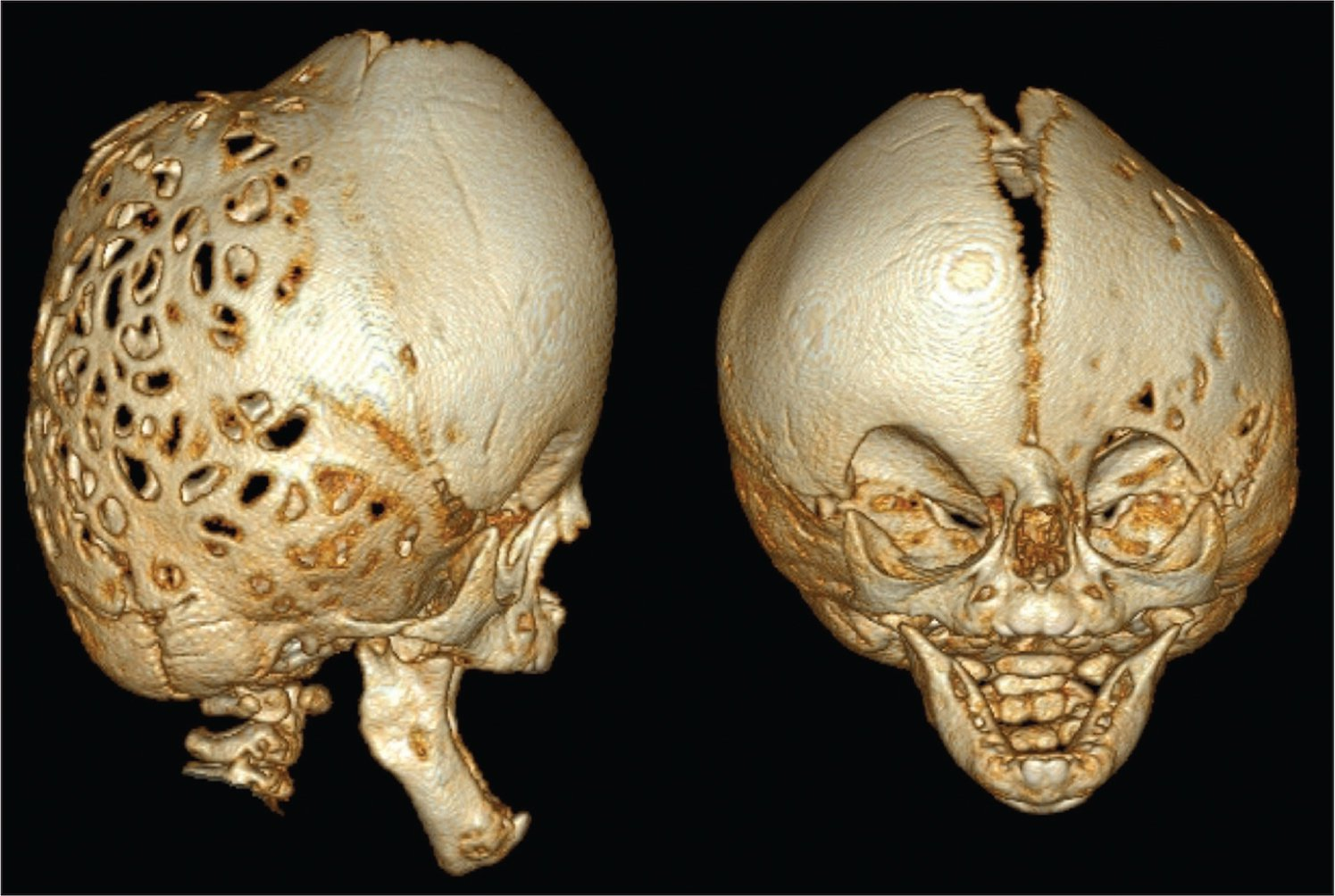 Computed tomography three-dimensional skull and facial bones demonstrating increased craniolacunae throughout the cavarium, multiple suture synostosis, and severe mid face hypoplasia.