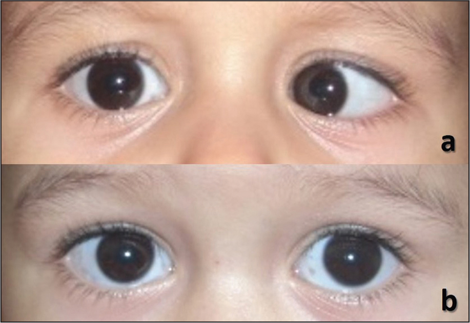 Case 1 with periods of cyclic esotropia showing (A) strabismus and (B) non-strabismus.