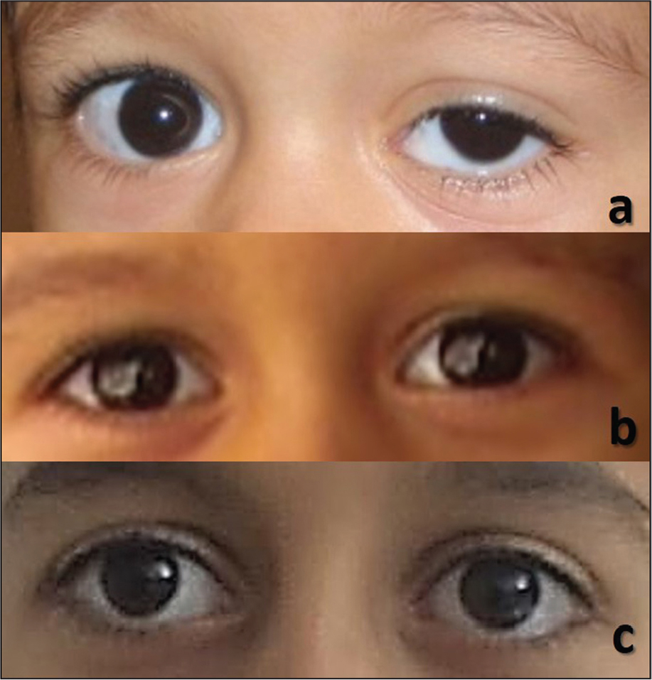 Case 1 at (A) 1 week after the left medial rectus botulinum toxin type A injection (with left ptosis and orthophoria with abnormal head posture), (B) orthophoria after 14 months of botulinum toxin type A injections, and (C) orthophoria 9 years after botulinum toxin type A injections.